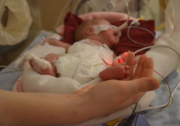17 ноября в мире отмечается День преждевременно рождённых детей