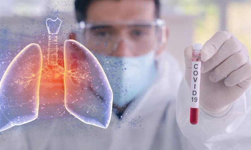 Выздоровление после Covid-19: консультирует пульмонолог