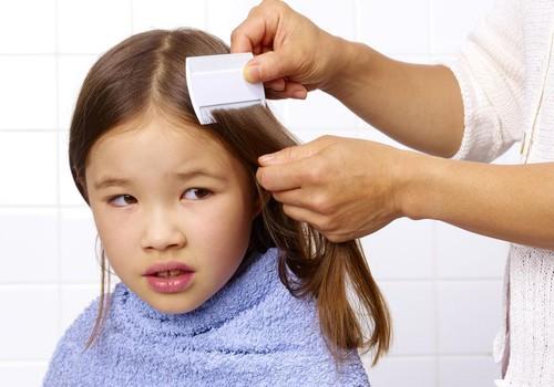 Родительский страх – вши, глисты и блохи. Как распознать и избежать?