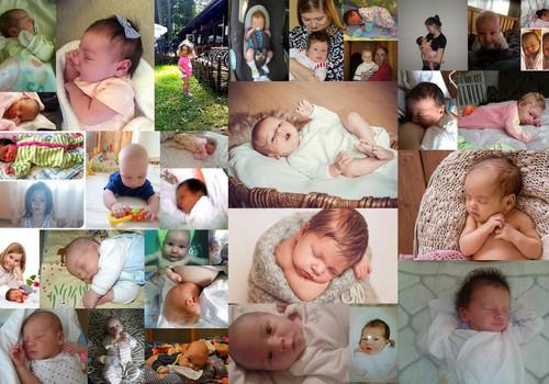 Сильная изжога - к длинным волосикам у новорожденного: миф или правда? Подводим итоги конкурса