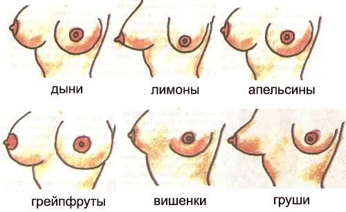 большая женская грудь как с этим бороться: